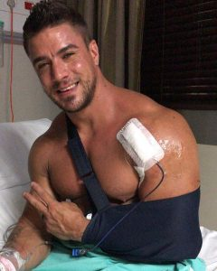 jaco-de-bruyn-suffers-from-ruptured-bicep1